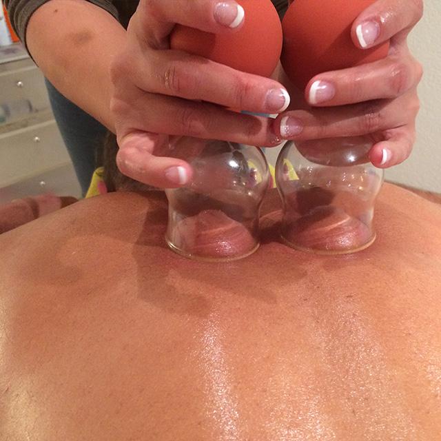 IMG 3411 Schröpfkopf Massage