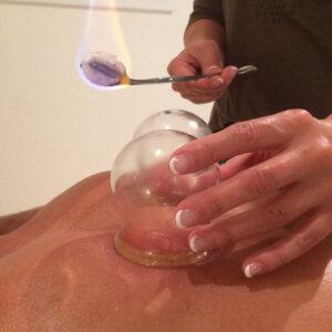 01 Schroepfkopf Massage