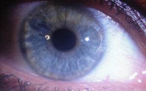 06 Augen Zungen Puls Diagnostik
