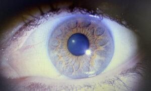 Augendisgnose